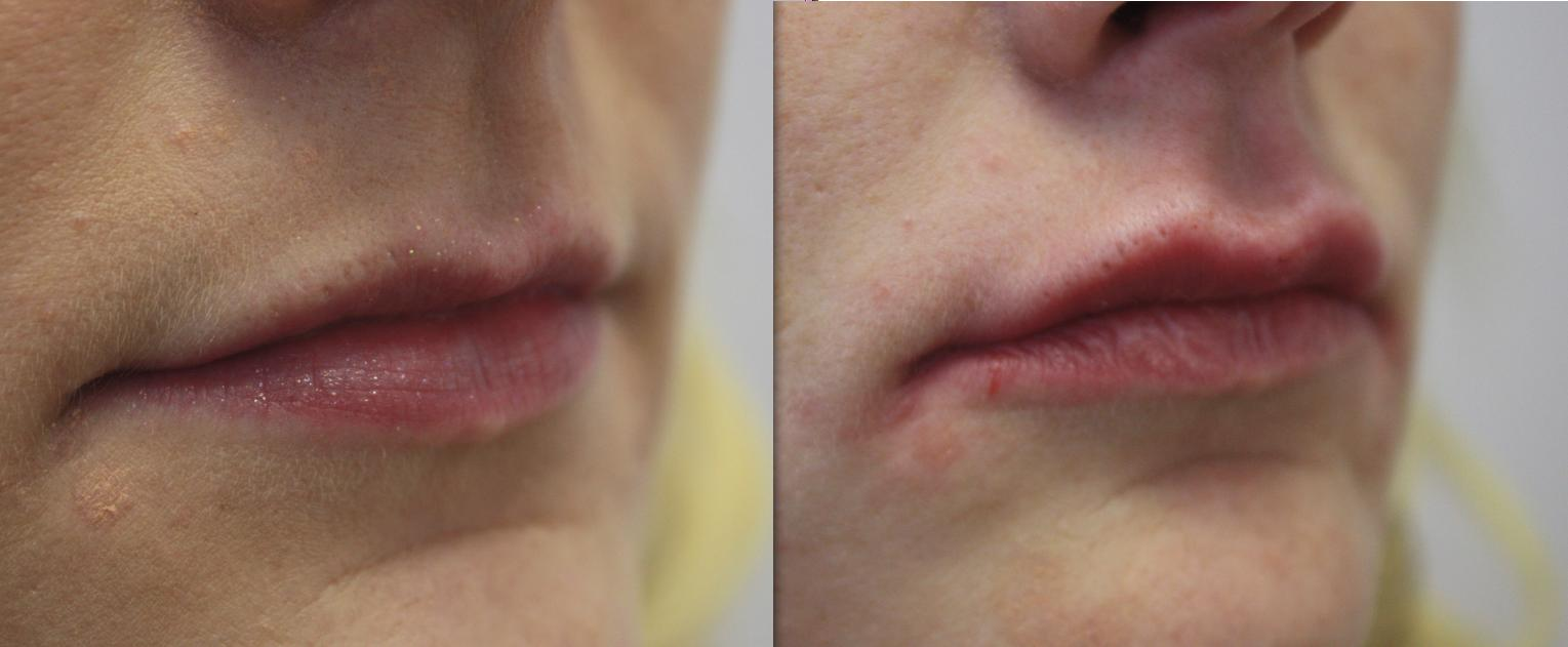 Lip Augmentation volume enhancement