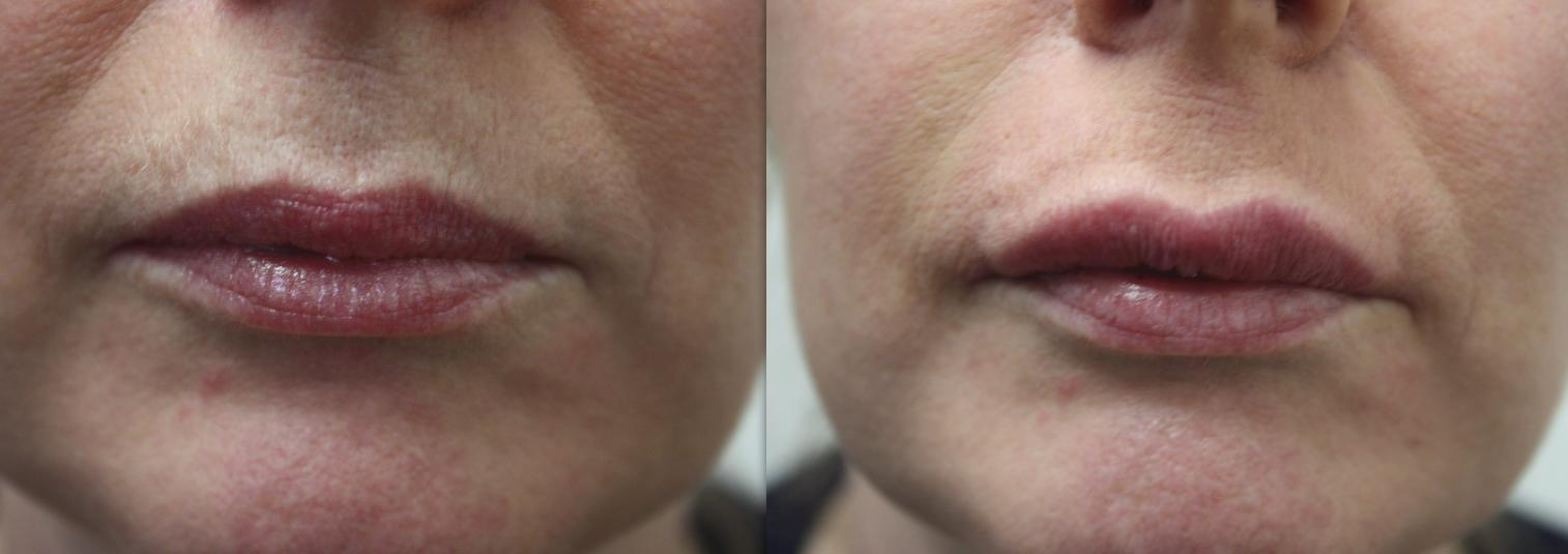 Lip Augmentation volume enhancement dermal fillers
