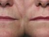 Lip Augmentation volume enhancement cosmetic clinic dublin