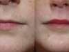 Lip Augmentation and volume enhancement at castleknock cosmetic clinic dublin