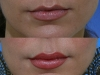 Lip Augmentation with restylane cosmetic clinic dublin