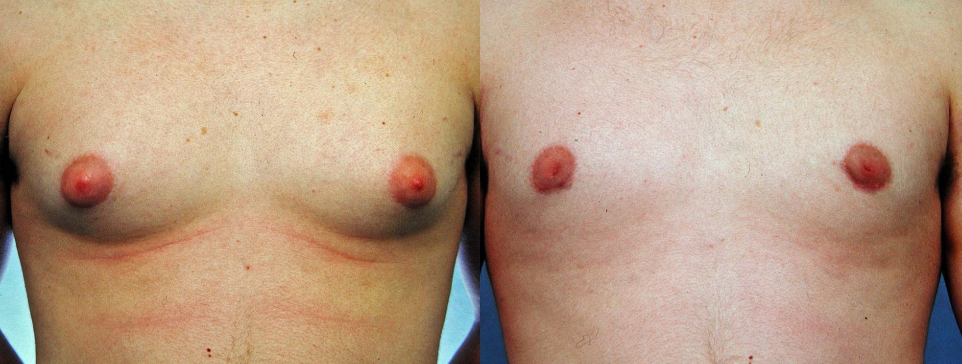 man-boobs-1 Vaser lipo cosmetic surgery clinic dublin 15