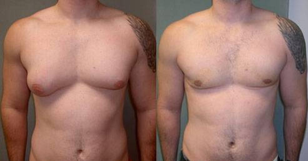 man-boobs pecs Vaser lipo cosmetic surgery clinic dublin 15