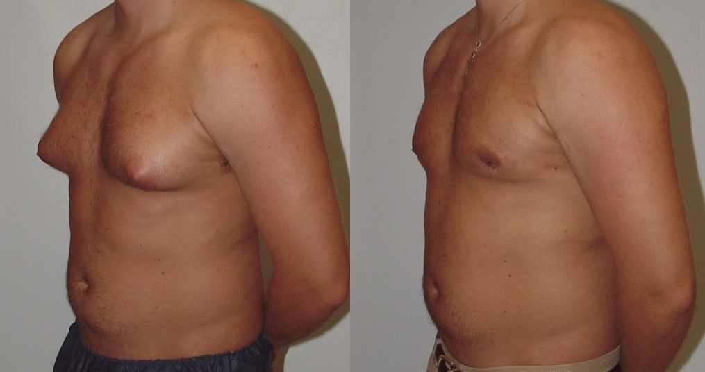 man-boobs-3 Vaser lipo cosmetic surgery clinic dublin 15