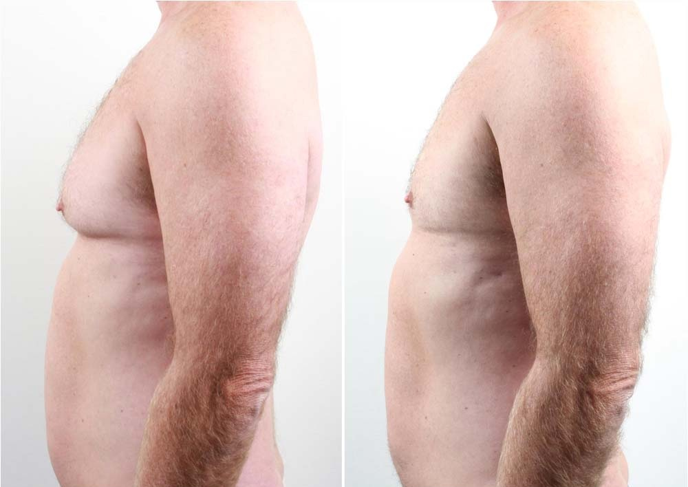 man-boobs-4 Vaser lipo cosmetic surgery clinic dublin 15