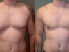 man-boobs pecs Vaser lipo cosmetic surgery clinic dublin 15