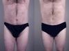 vaser-for-men-1 Man Vaser lipo liposuction cosmetic surgery clinic Dublin