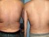 vaser-for-men-4 Man Vaser lipo liposuction cosmetic surgery clinic Dublin