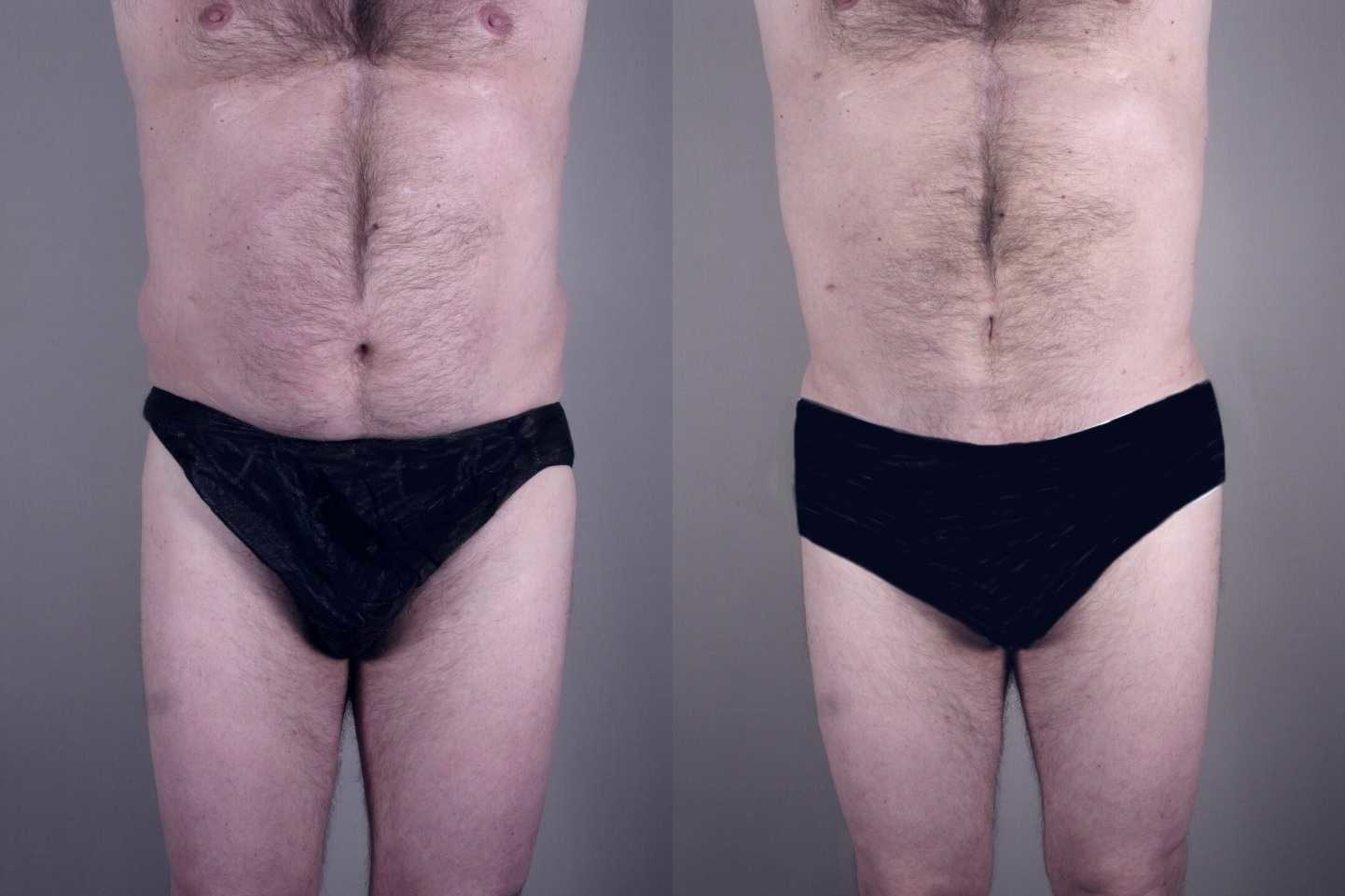 vaser-for-men-1 Man Vaser lipo liposuction cosmetic surgery clinic Dublin