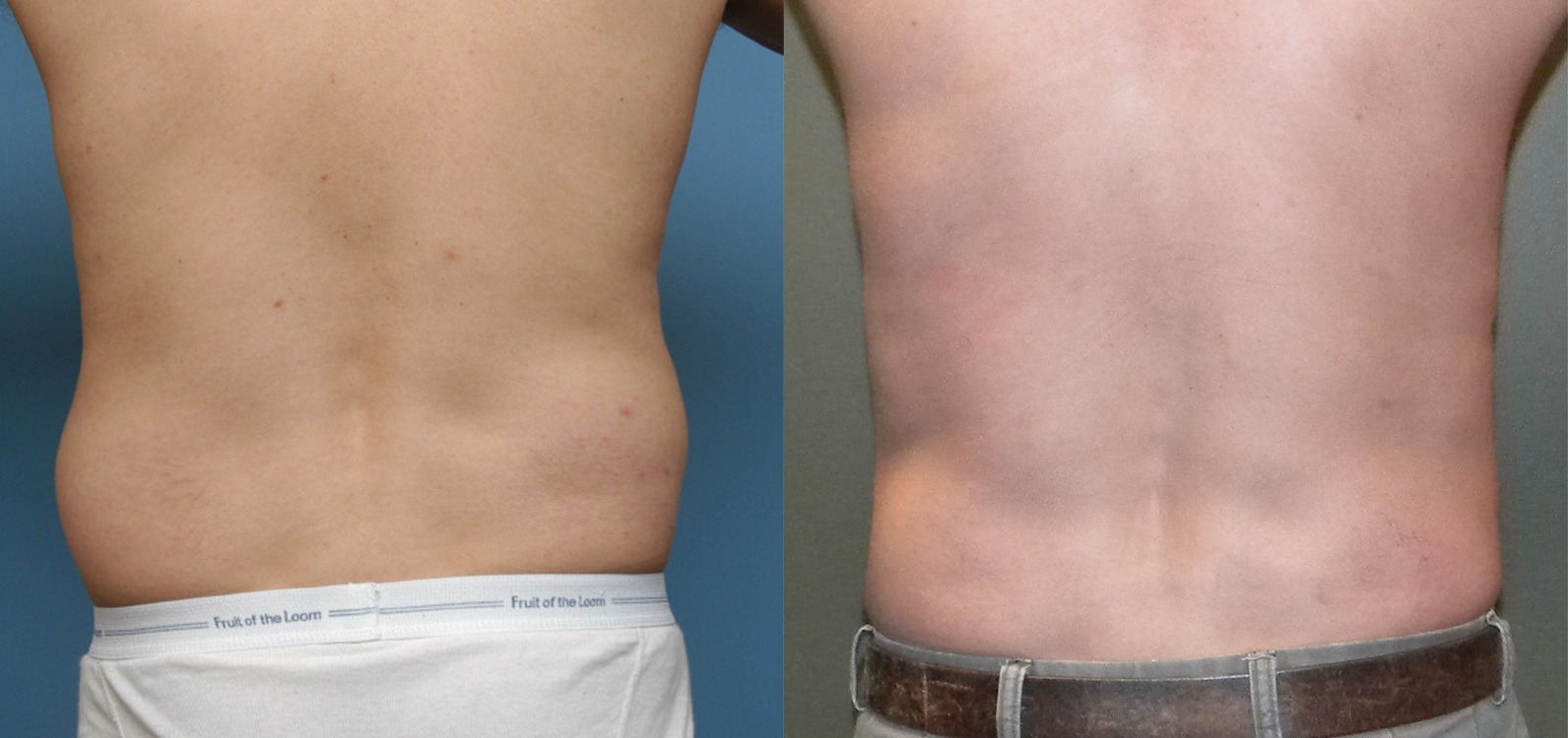 vaser-for-men-3 Man Vaser lipo liposuction cosmetic surgery clinic Dublin