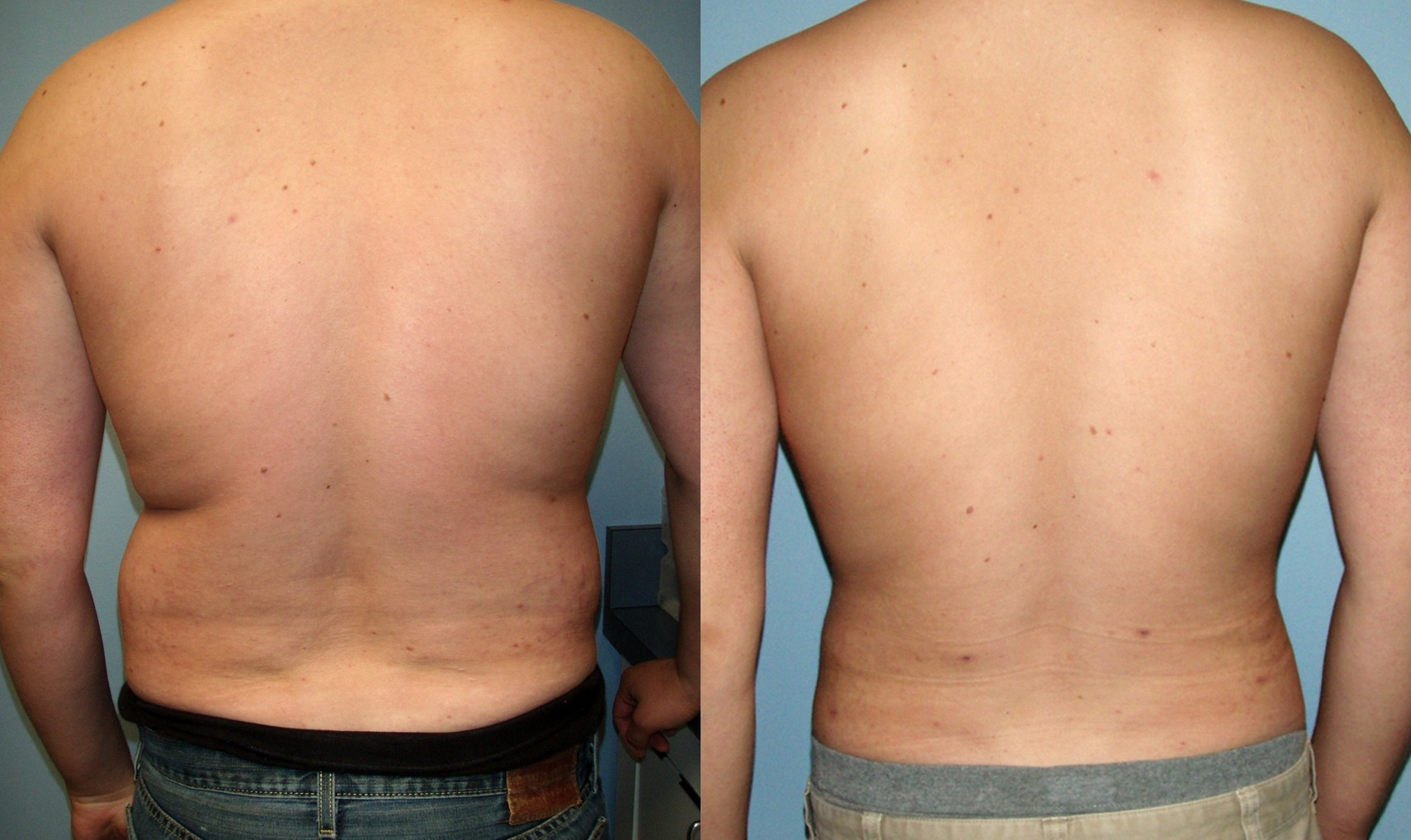 vaser-for-men-4 Man Vaser lipo liposuction cosmetic surgery clinic Dublin