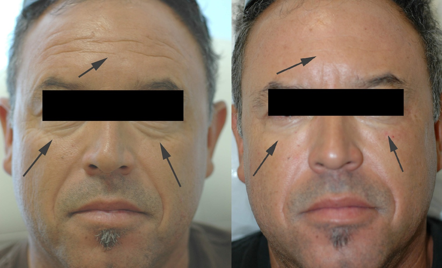 Wrinkle Treatment for Men with botox cosmetic clinic dublin