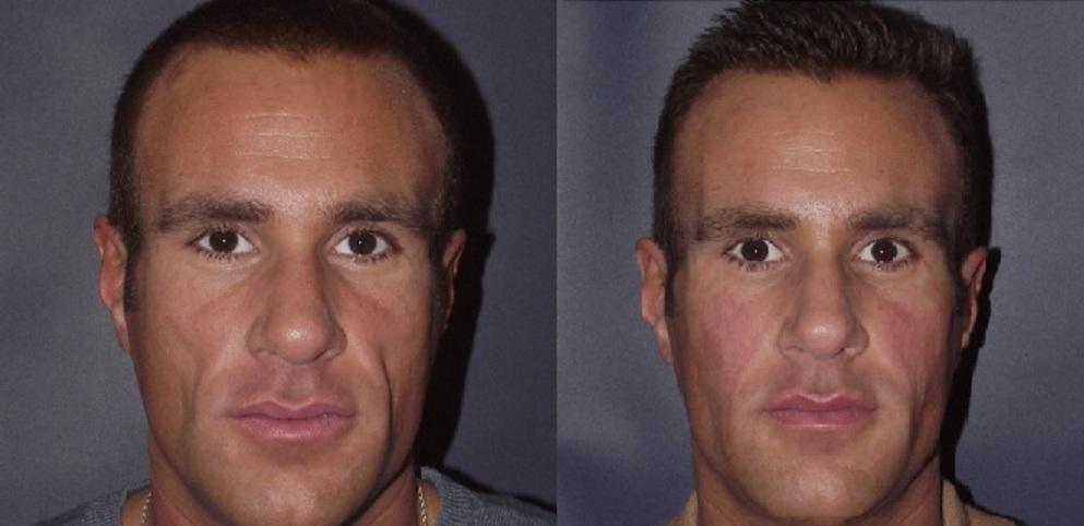 lip injecties voor en na