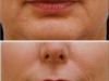 Marionette Lines clown lines at Castleknock cosmetic clinic Dublin 15