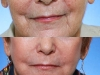 Marionette Lines dermal filler at Castleknock cosmetic clinic Dublin 15