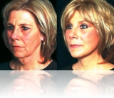 mini-lift-1 mini_facelift thread lift face lift cosmetic clinic dublin
