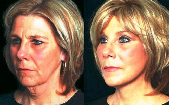 Mini Facelift, Scarless Face Lift, Thread Lift Dublin Cosmetic