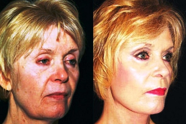 mini-lift-3 mini_facelift thread lift face lift cosmetic clinic dublin