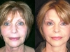 mini-lift-2 mini_facelift thread lift face lift cosmetic clinic dublin