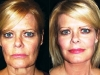 mini-lift-4 mini_facelift thread lift face lift cosmetic clinic dublin