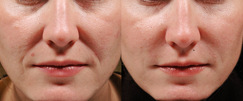 clinic-27 dermal fillers  at Castleknock cosmetic clinic Dublin 15