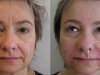 clinic-24 dermal fillers  at Castleknock cosmetic clinic Dublin 15