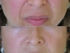 naolabial-lines-2 deep  at Castleknock cosmetic clinic Dublin 15