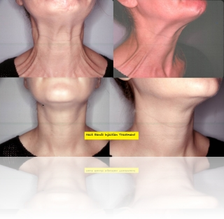 neck-bands-botox