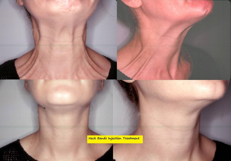 neck-bands-botox