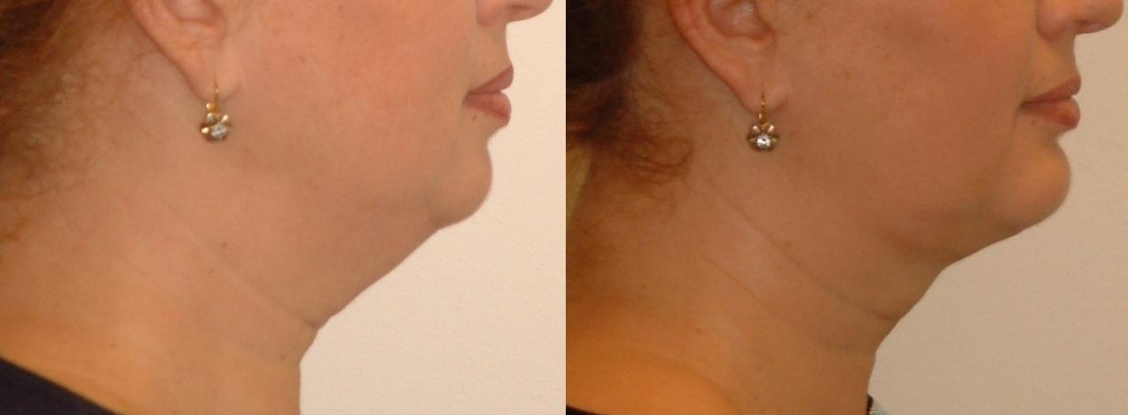 neck-treatments-1