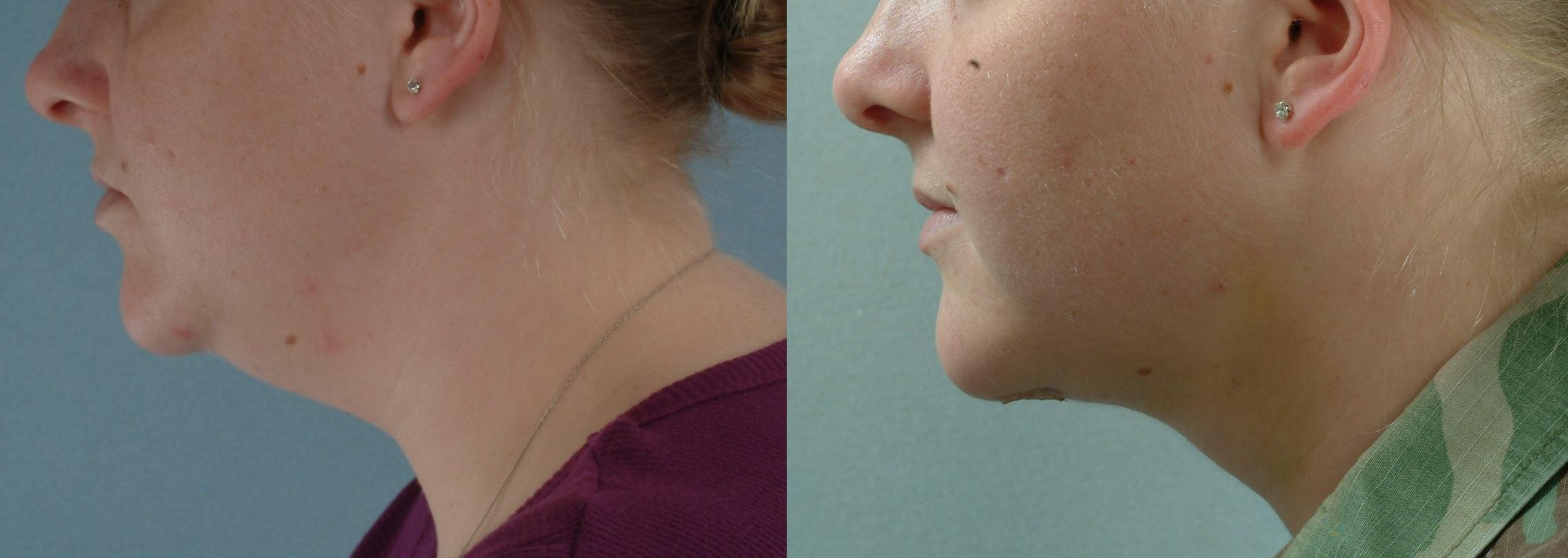 neck-treatments-2