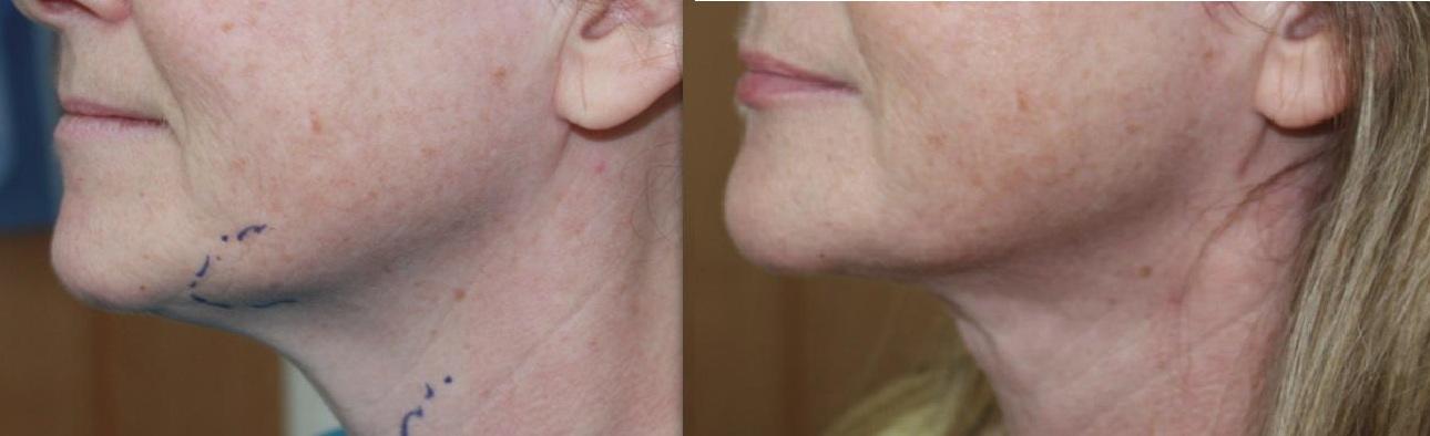 neck-treatments-3