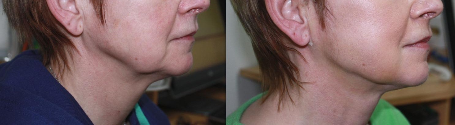Neck Amp Chin Treatments At Dublin Cosmetic Clinic