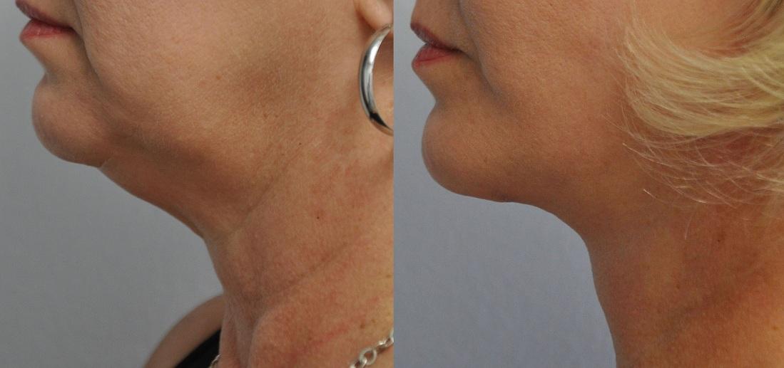 neck-treatments-5