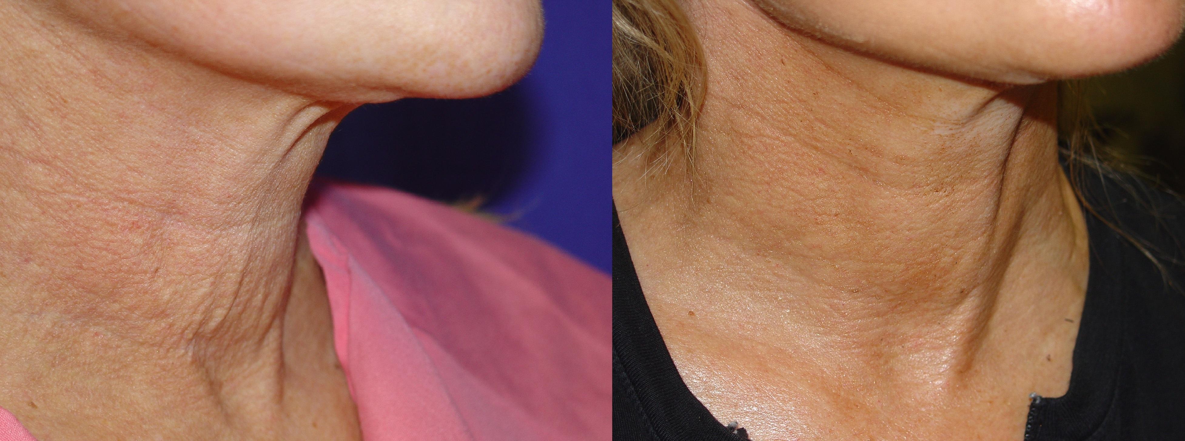 skin-tightening-neck-1