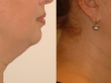 neck-treatments-1