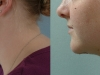 neck-treatments-2
