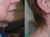 neck-treatments-4