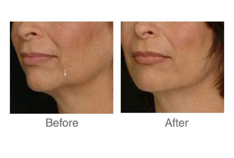 botox nephretiti facelift at castleknock cosmetic clinic dublin