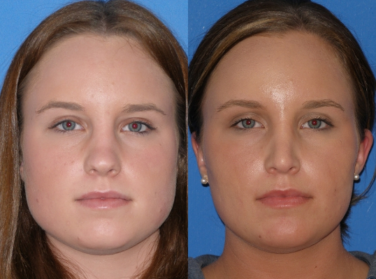 Jaw Reduction Using Botox - How Are the Results? Doctor ...