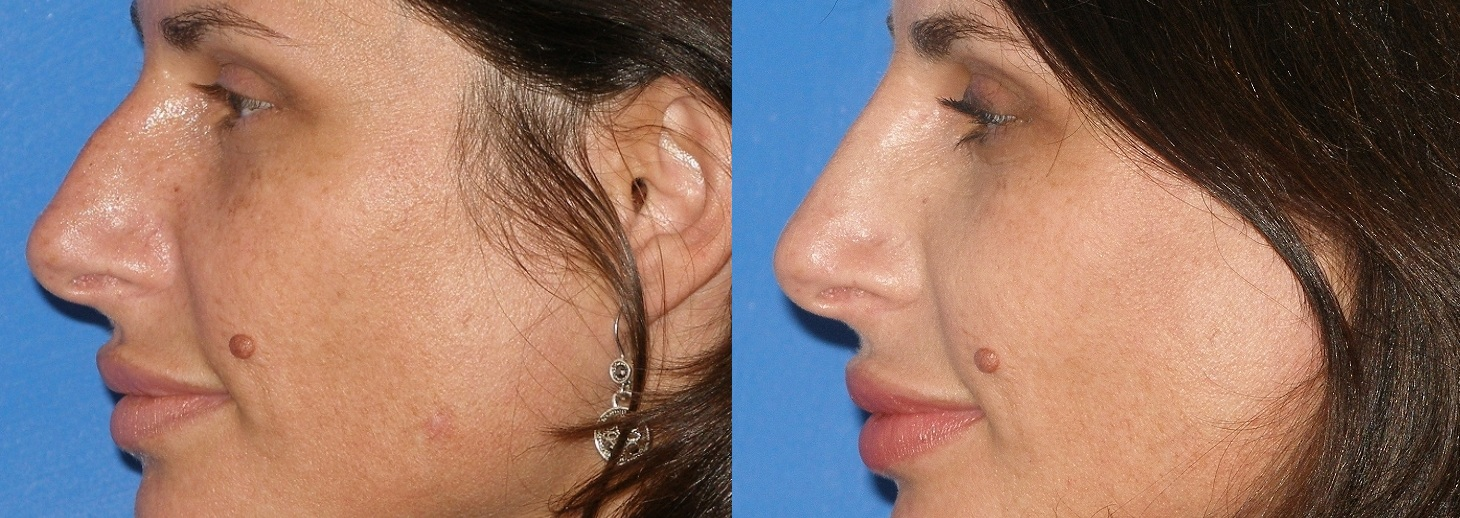 nose job surgery Rhinoplasty, also referred as nose surgery or nose job, improves the look and proportion of the patient's nose, enhancing facial harmony and self esteem rhinoplasty may also fix breathing.