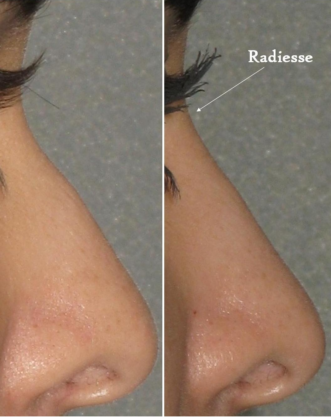 Non Surgical Nose Correction nose job without no surgery dermal fillers cosmetic clinic Dublin