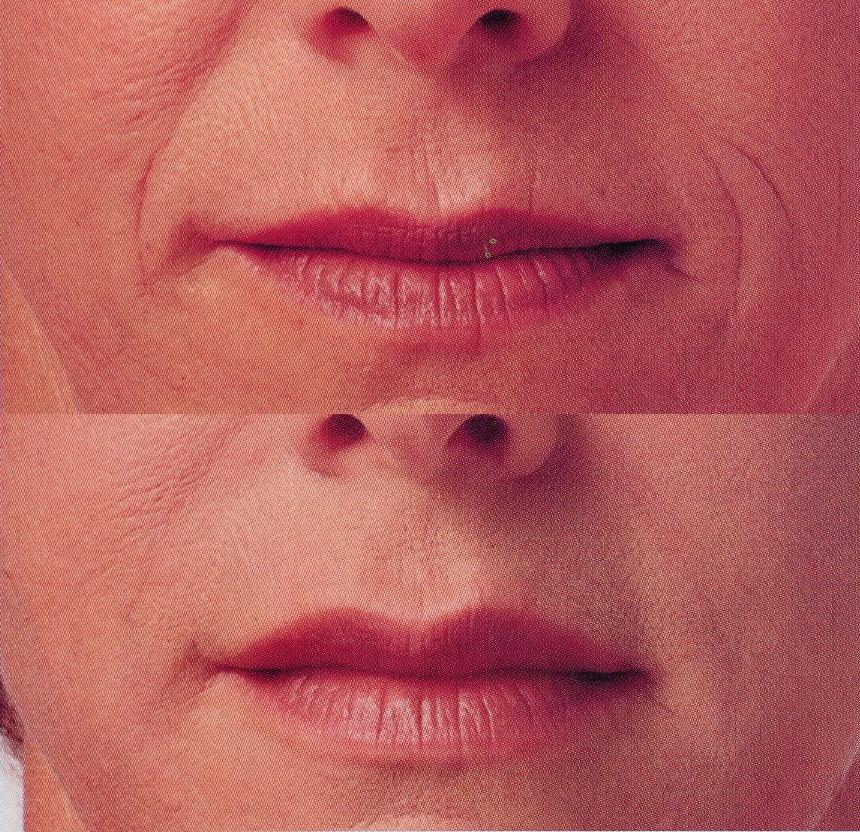 nl-lines dermal fillers at castleknock cosmetic clinic dublin 15