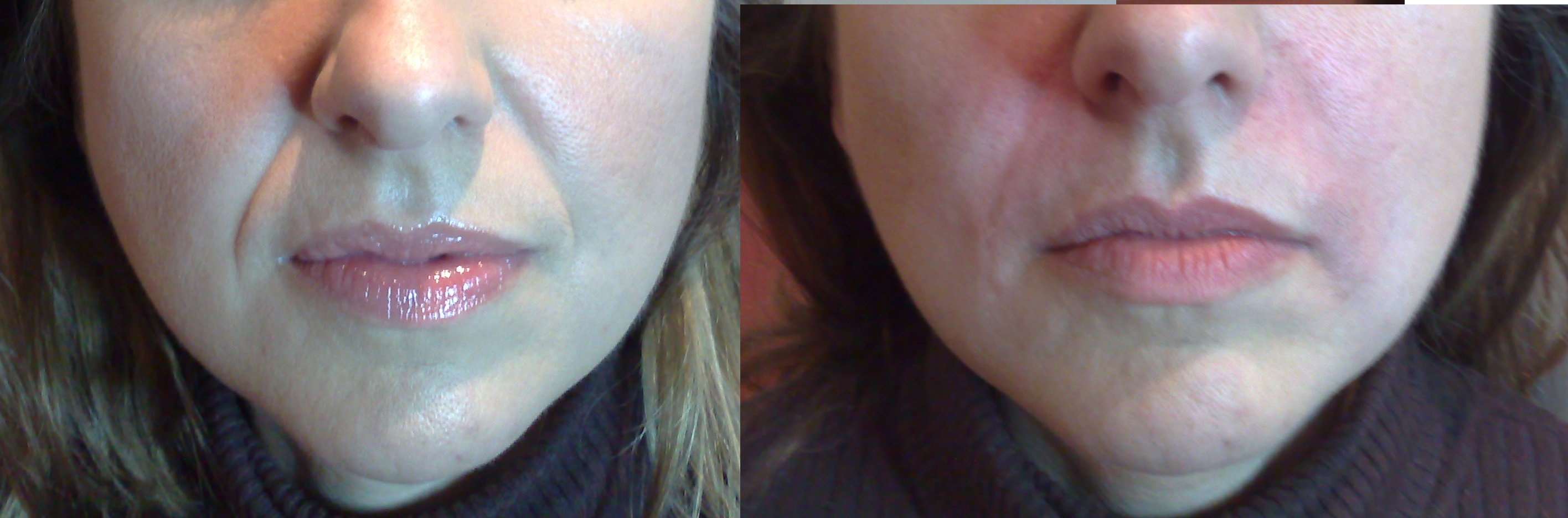 parenthesis-lines deep lines dermal fillers at castleknock cosmetic clinic dublin 15