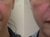 parenthesis-lines dermal fillers at castleknock cosmetic clinic dublin 15