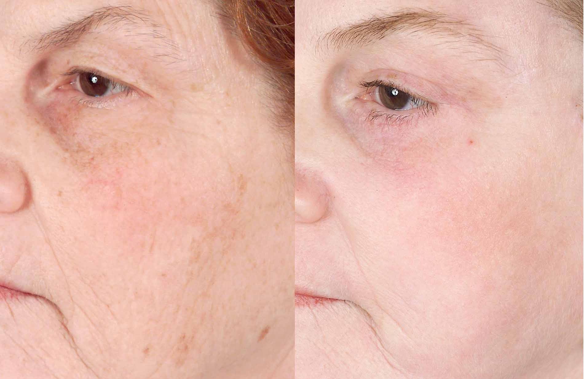photo-rejuvination ruddy skin  laser at Castleknock cosmetic clinic dublin 15