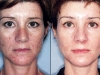 photo-rejuvination-1  laser at Castleknock cosmetic clinic dublin 15