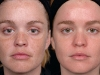 photo-rejuvination melasma  laser at Castleknock cosmetic clinic dublin 15