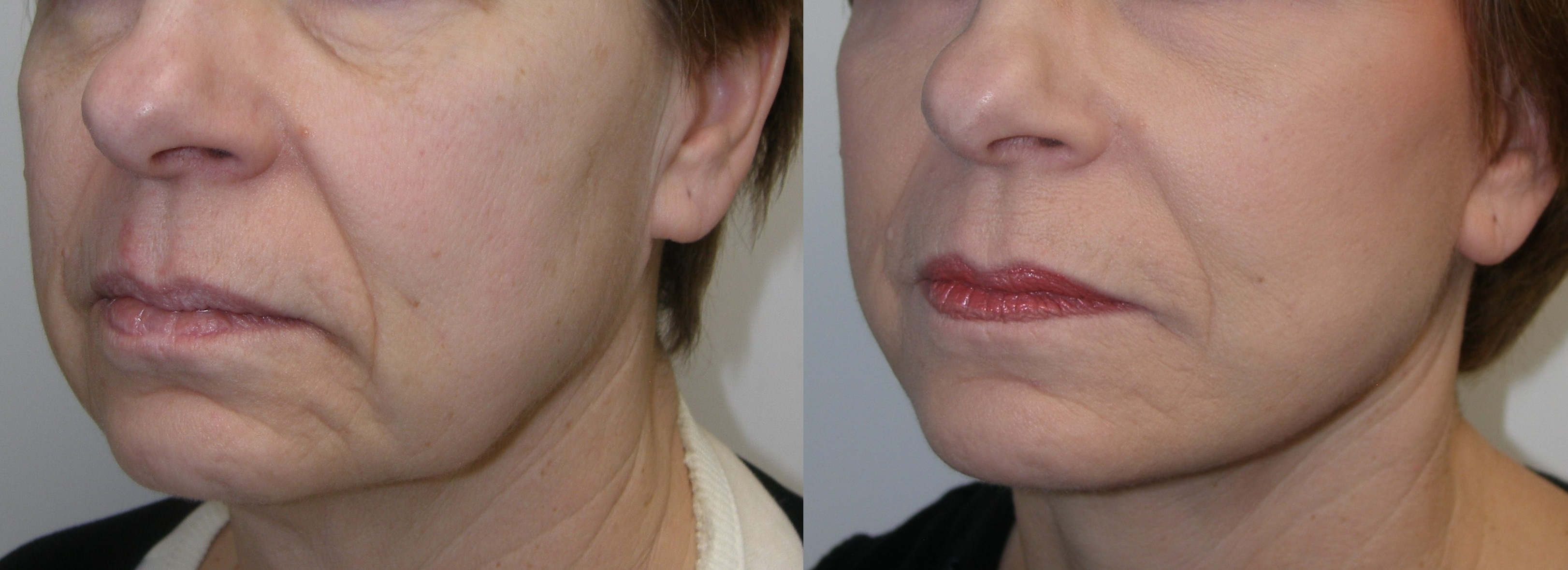 Sagging Jowls | Jaw Line | Castleknock Cosmetic Clinic