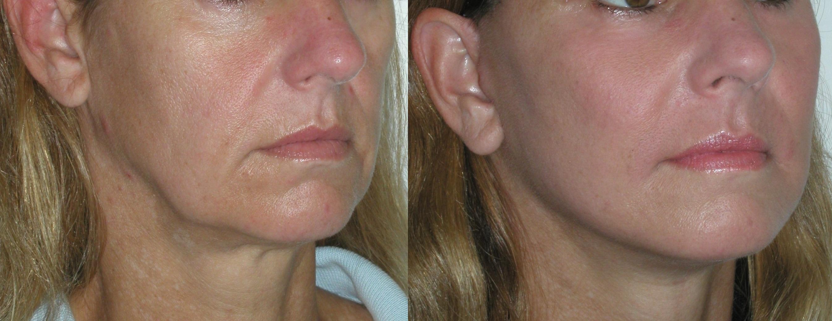 sagging-jowls-2  castelknock cosmetic clinic Dublin